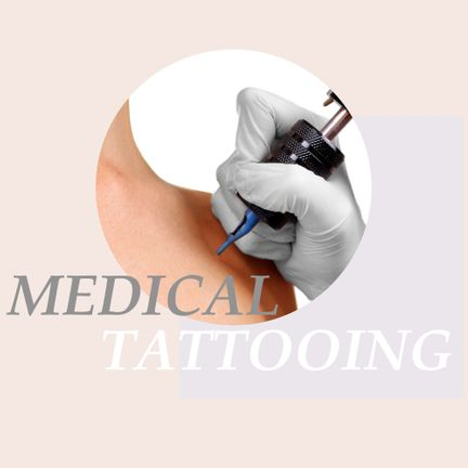 medical tattooing