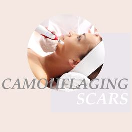 camouflaging scars